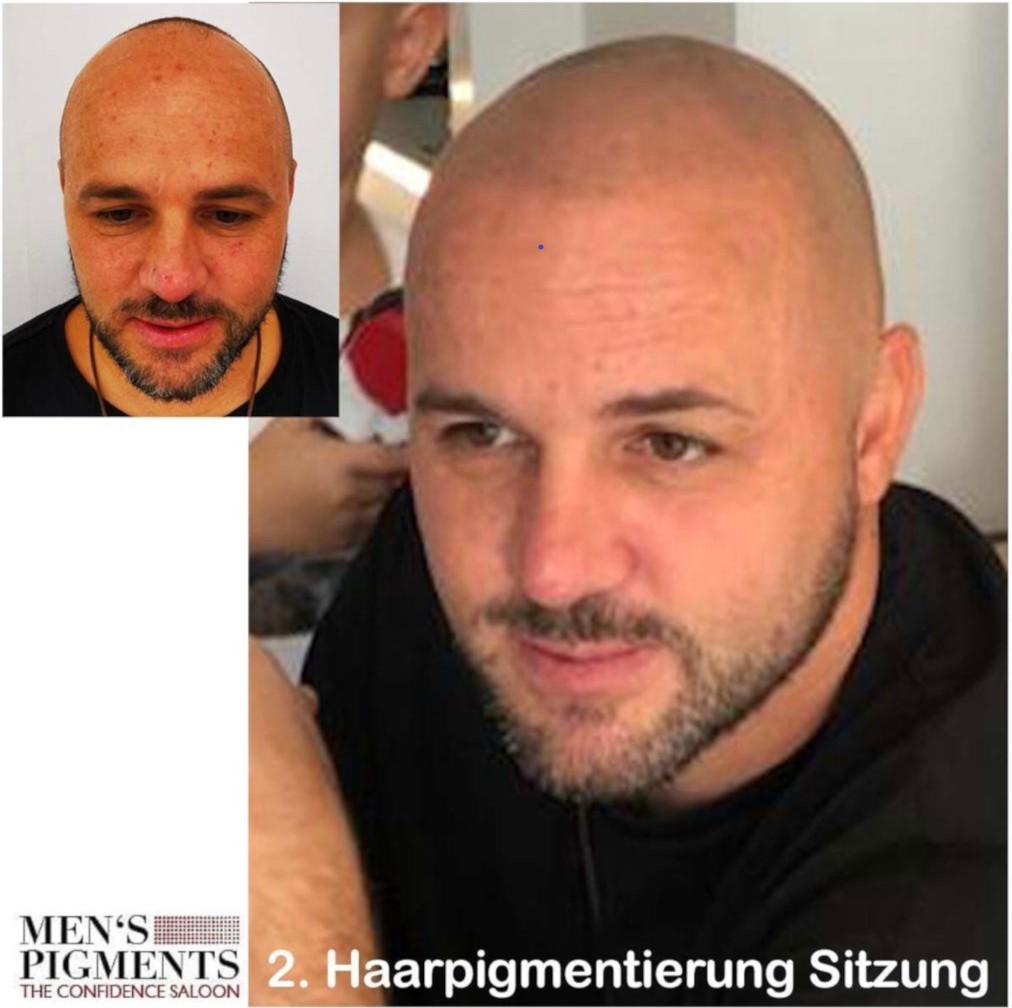 Vorher Nachher Haarpigmentierung Stuttgart